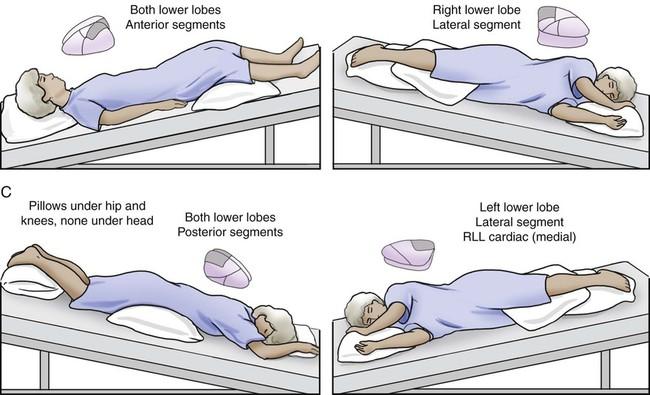 Vật lý trị liệu tại nhà COPD